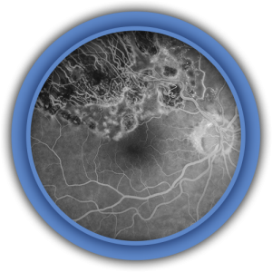 Fundus Photo - Home