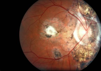 fundus-photo-web-color-2